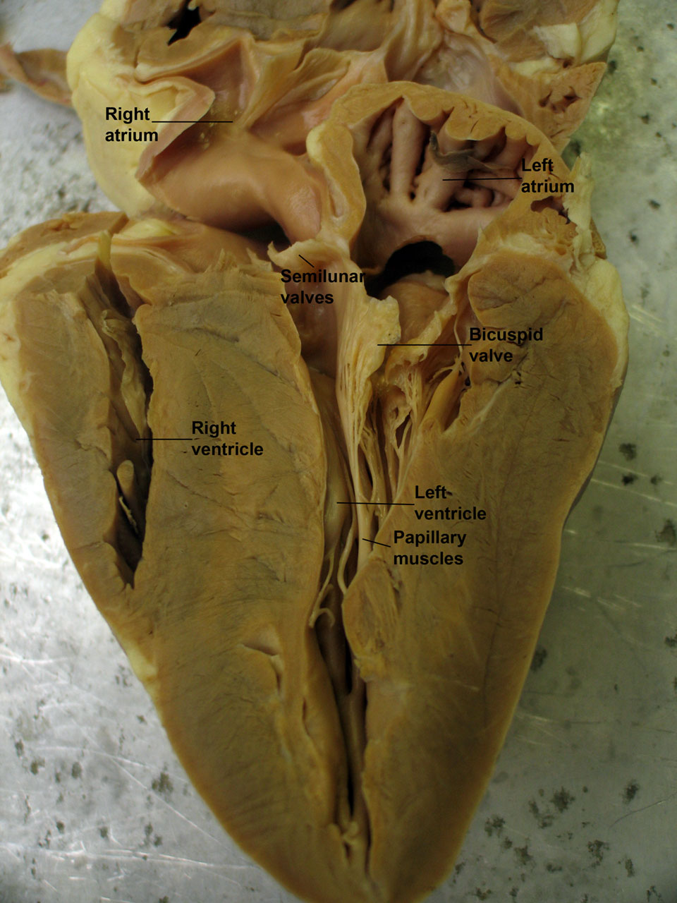 Printables Sheep Heart Dissection Lab its a matter of the heart httpwww quepid orgwordpresswp contentuploads200812sheep heart1 jpg